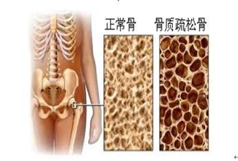 骨组织微结构退变